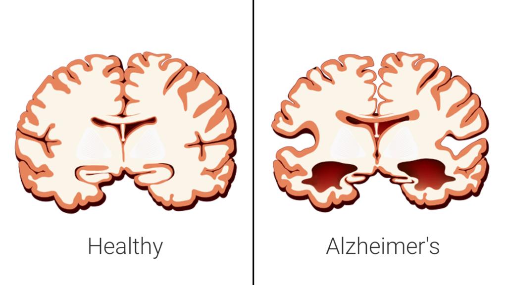 Alzheimer - jak zmienia się mózg chorego
