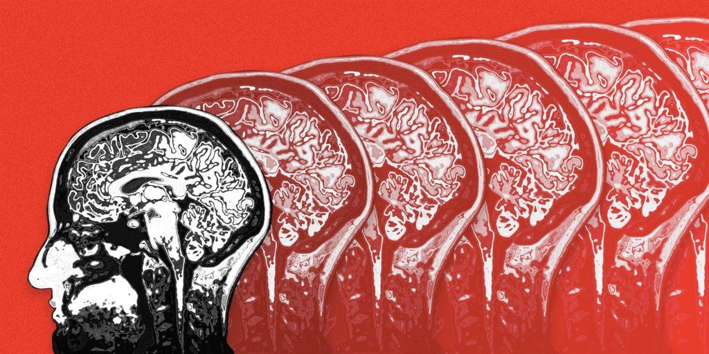 Plastyczność mózgu w terapii neuropsychologicznej